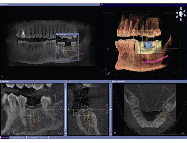 CBCT Cone Beam Technology Scan Dental Procedure