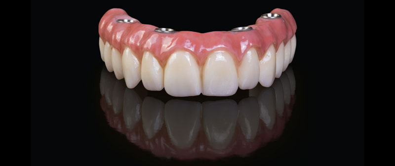 Parker-Dental-Group-Implant-Dentures