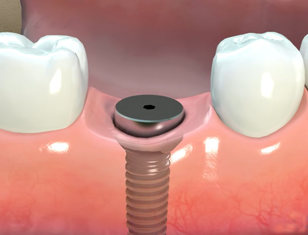 Parker Family Dental Dental Implants Update