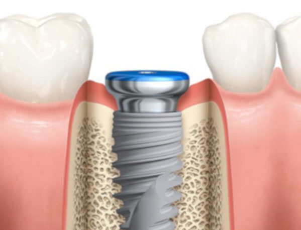 Parker Family Dental Dental Implants